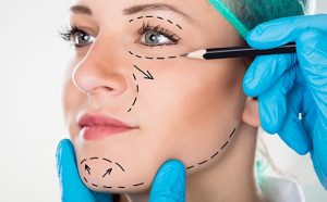 Plastic Surgery Anesthesia - Windy City Anesthesia